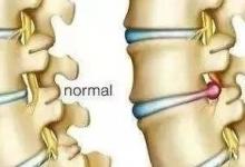 骨盆侧倾导致脊柱不直,教你两个动作解决!