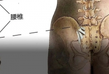 腰背痛、走不远、下肢麻无力,可能患上了腰椎管狭窄!