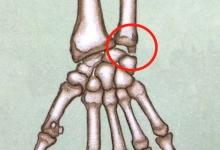 """『手腕疼』就是腱鞘炎?当心""""尺骨撞击综合征"""""""