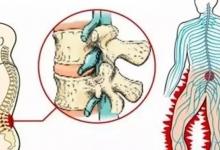 腰椎间盘突出运动操,值得一看!