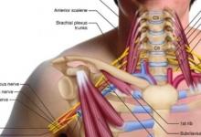 胸廓出口綜合征(TOS)的評估原理,你知道嗎?