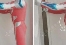 骨盆前倾、膝超伸,10个动作帮您纠正下交叉综合征