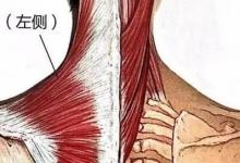 颈肩痛还溜肩?试试斜方肌的自我牵伸训练~