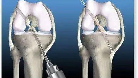 全方位了解ACL重建术后康复