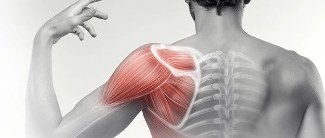 肩部疼痛,易被忽略的3组肌肉,来自海外PT的分享。