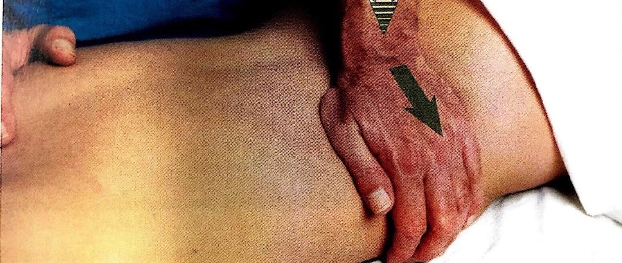 """""""肉疼""""也许是『筋膜』出了岔子,这些康复手段你都知道吗?"""