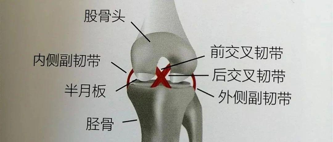 膝关节内侧痛小心内侧副韧带损伤,它的康复治疗需注意什么?