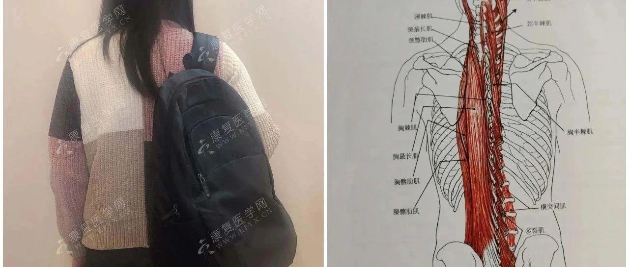 跨越整个背部的竖脊肌最易受伤,8个动作远离损伤