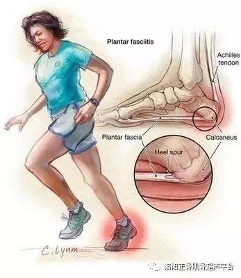足底筋膜炎的康复治疗与超声检查